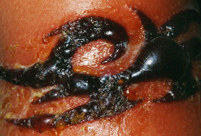 infeccao-tinta-tatuagem